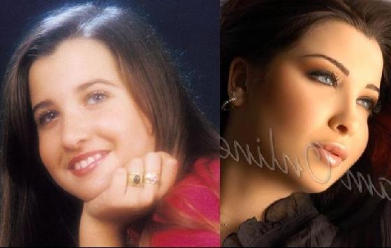 До и после пластики фото: